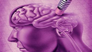 exemple de tfe sur la maladie d alzheimer